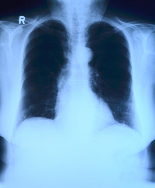 X-ray Image of Lung Anatomy