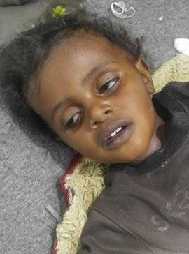 ​Fifty new cholera cases records in Al-Jawf