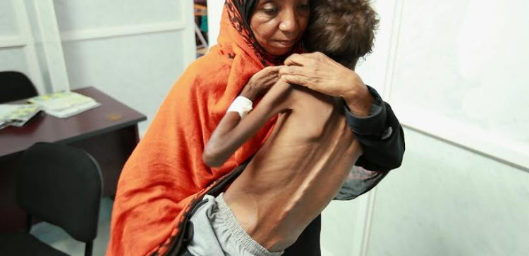 9 facts the world should know about the humanitarian crisis in Yemen