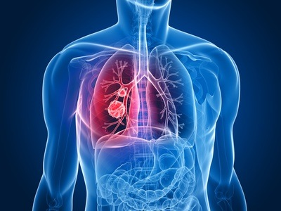 Elimination of toxins, Chinese Medicine and Healthy Lungs