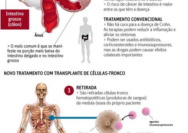 crohn-novo-tratamento-1-610×1024