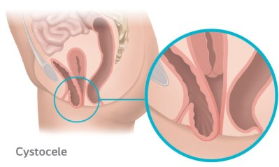 Cystocele Prolapse occurs when the bladder protrudes into the vagina due to the anterior (front) vaginal wall becoming weak.
