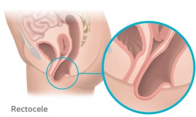 Rectocele Prolapse occurs when the rectum protrudes into the vagina due to the weakening of the supporting tissue.