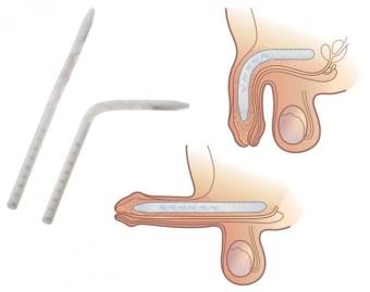 The Genesis™ Flexible Rod Penile Implant