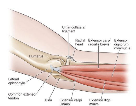 Outside and Upper Side of the Elbow Joint Pain