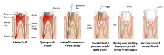 root canal treatment templestowe