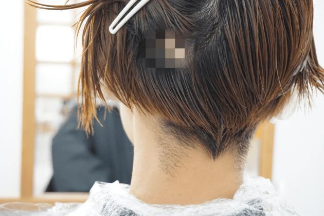 八木ママ、10円ハゲが出来ました!!〜円形脱毛症の原因と対処法〜