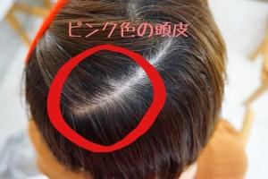 ピンク色の頭皮って、実は危険信号なんですよ!!