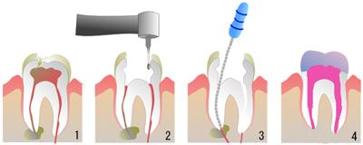 非外科的歯内療法