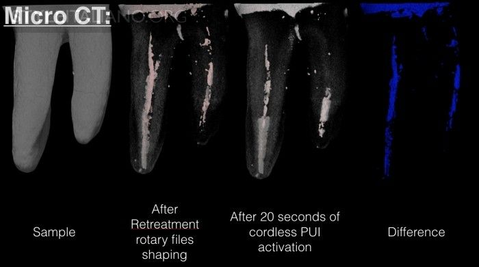Root canal disinfection during retreatments: a cordless revolution