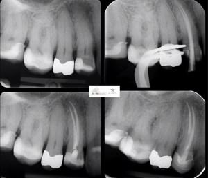 Endo-resto treatment of upper right first premolar.