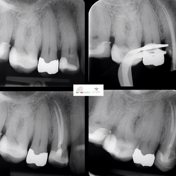 Endo-resto treatment of upper right first premolar.