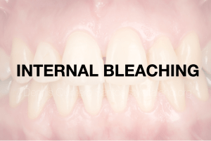 The use of internal bleaching in a non-vital tooth as a conservative approach