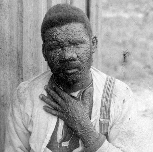 smallpox timeline