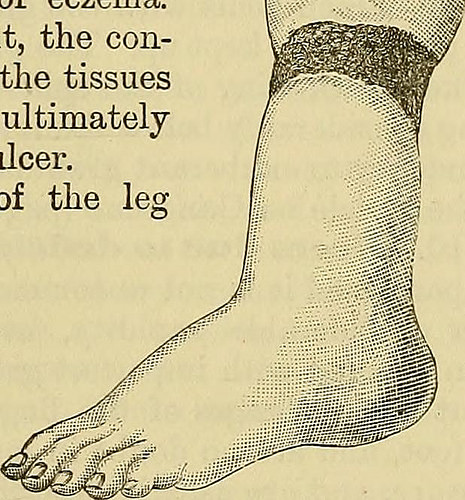 diabetic foot photo