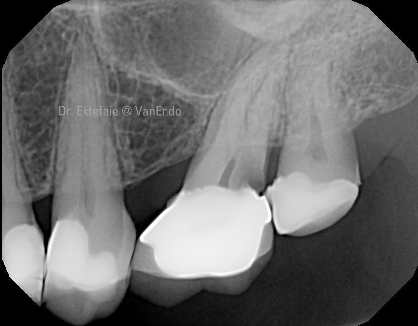 pre-op x-ray