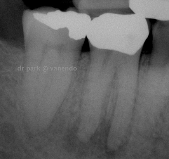 Tooth #4-6 pre-op radiograph