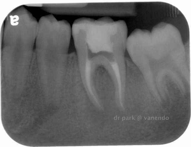 Immediate post-op radiograph of tooth #3-6 with lesion