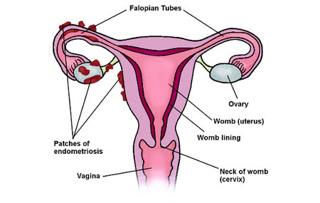 endometriosis example image