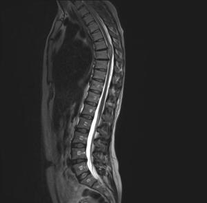 МРТ: опухоль спинного мозга (эпендимома) в грудном отделе