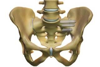 Fusión percutánea de la articulación sacroilíaca Dr. Morgenstern
