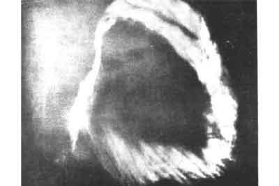 The Supernatural Cloud 1963