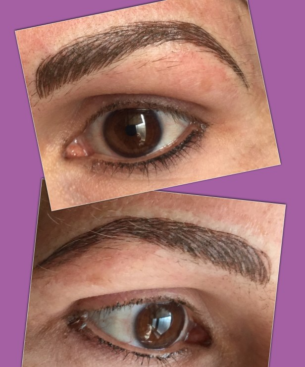 Micro Blading For Alopecia Caused Brow Hair Loss Enduring Esthetics