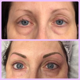 B4 & Immediately After Brow Micro-blading & Permanent Eyeliner Procedures