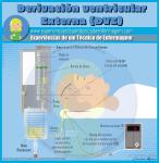 El Derivación Ventricular Externo (DVE)