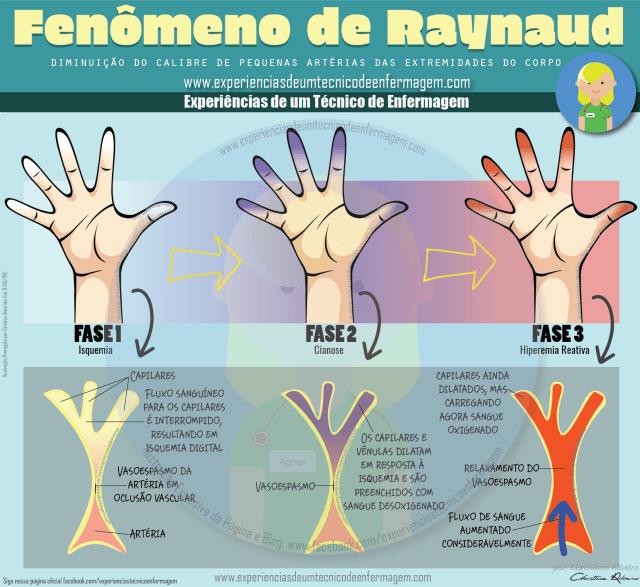 raynaud