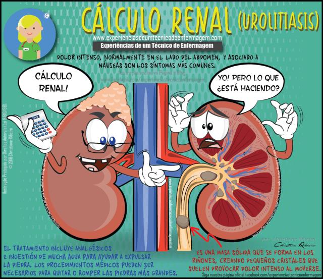 Cálculo renal