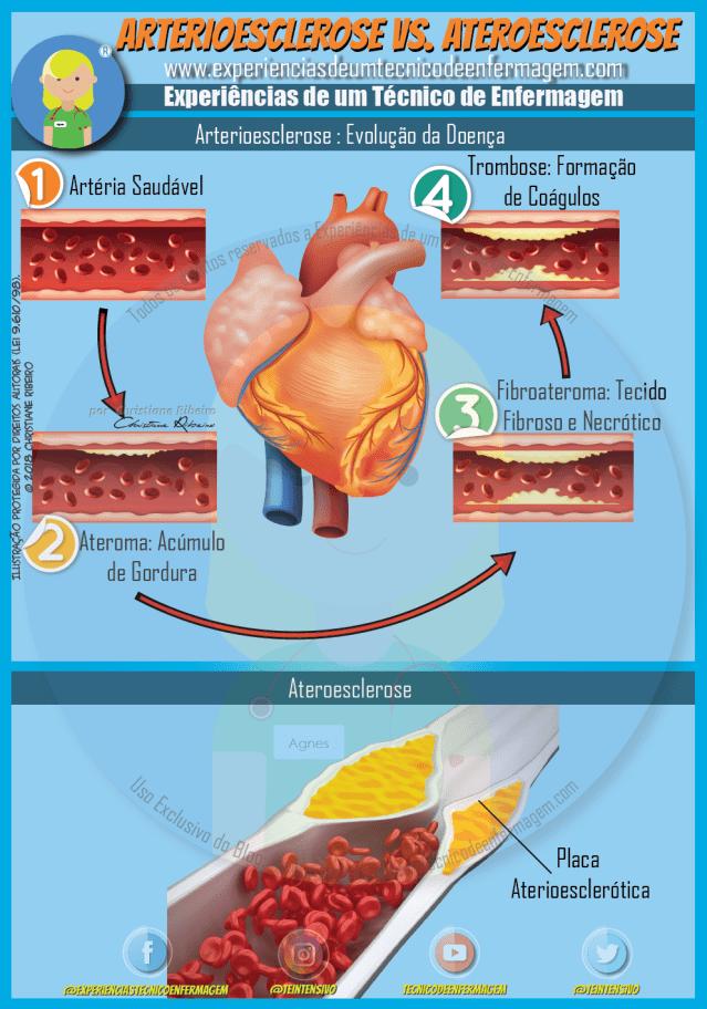 Arterioesclerose