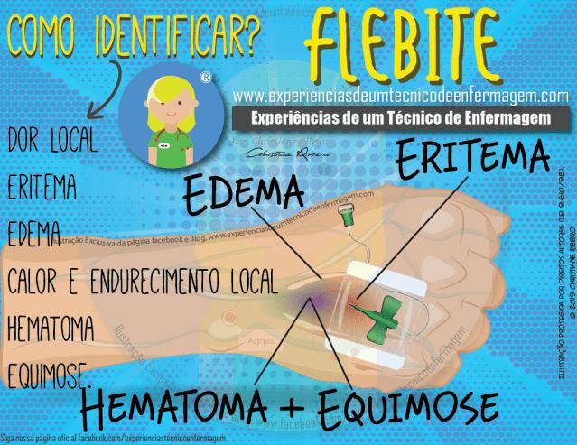 Flebite