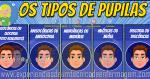 Avaliação Pupilar: Os Tipos de Pupilas