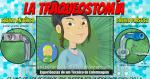 Entendiendo sobre La Traqueostomía
