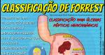 Classificação de Forrest: Úlceras Pépticas Hemorrágicas