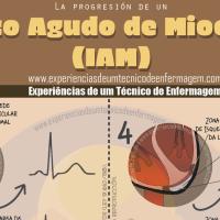 La progresión del infarto agudo de miocardio (IAM)