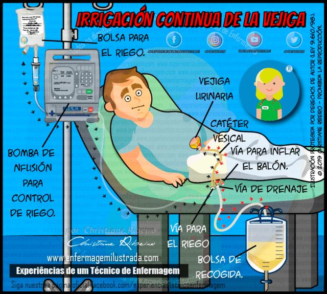 irrigación de la vejiga