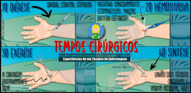 Tempos Cirúrgicos