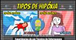 Os Tipos de Hipóxia