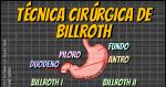 Gastrectomia: Billroth I e II