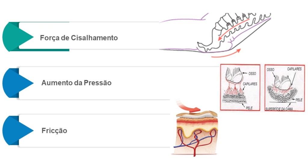etiologia-da-lesao-por-pressao