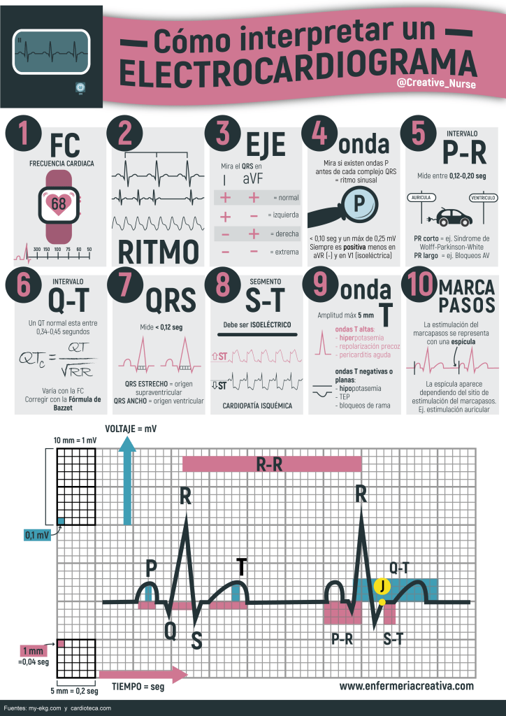 Como interpretar un ECG