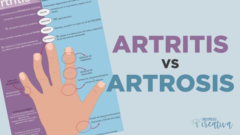 artritis vs artrosis