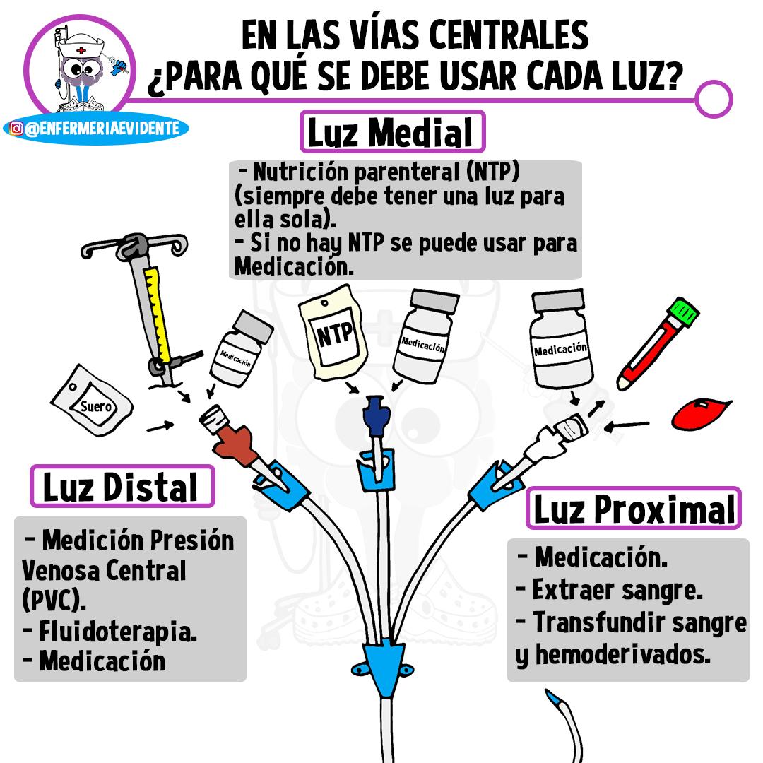 Medición de la presión venosa arterial