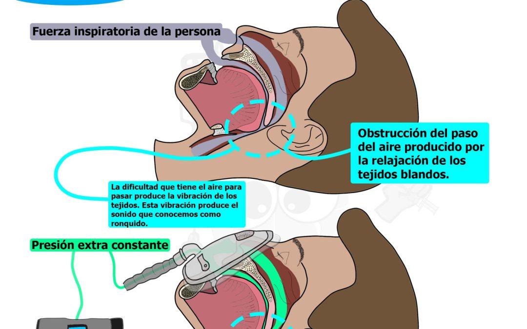 ¿Cómo funciona una CPAP?