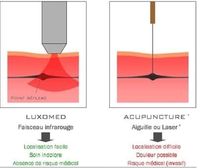 luxopuncture_reflexologie_accupuncture_tabac_poids_perpignan