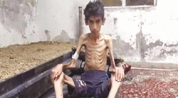 Assad and Hezbollah Supporters Mock Famine in Madaya
