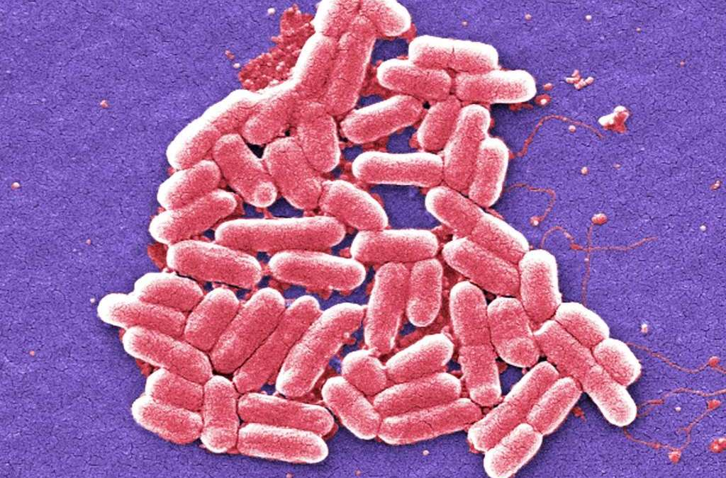 EU: 'Alarming' Superbugs a Risk to People, Animals and Food