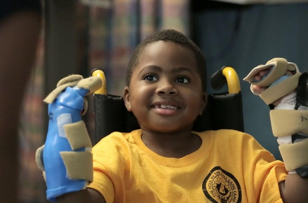 Doctors Confirm Success of World's First Child Double Hand Transplant